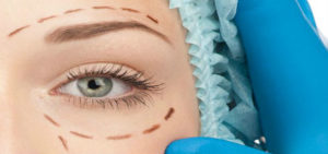 singapore-plastic-surgery-clinic-eyelid-aesthetic-procedure