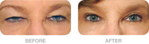 before_after_photo-eyelid-surgery-by-singapore-plastic-surgery-clinic-surgeon